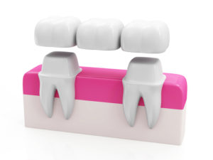 dental bridges denver co