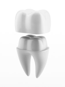dental crowns denver co